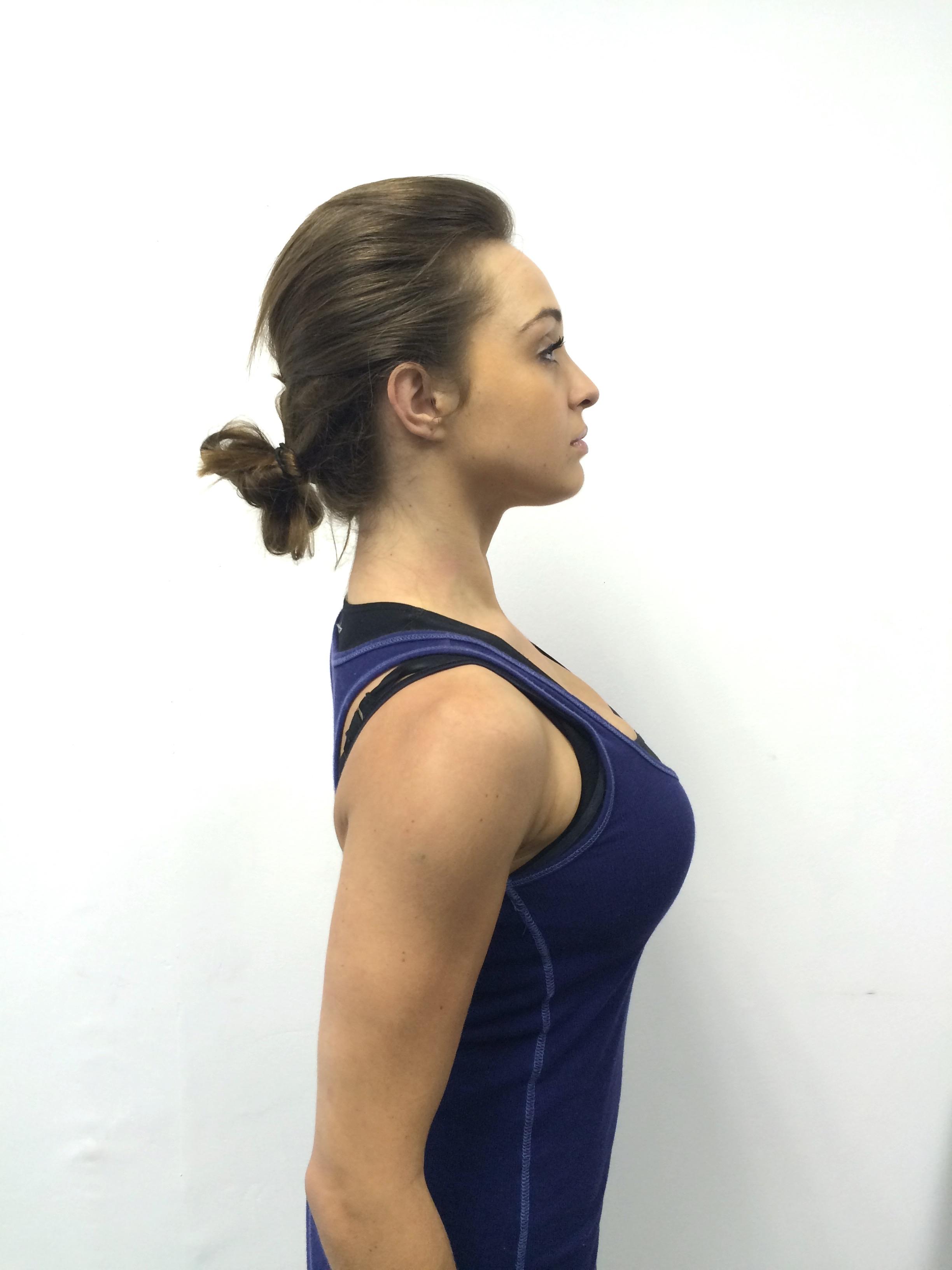 posture-correction-Sandton-Johannesburg